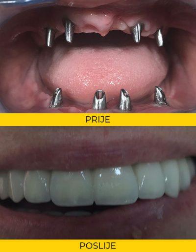 Fiksna protetika na implantatima